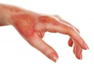 hand with scalding burn