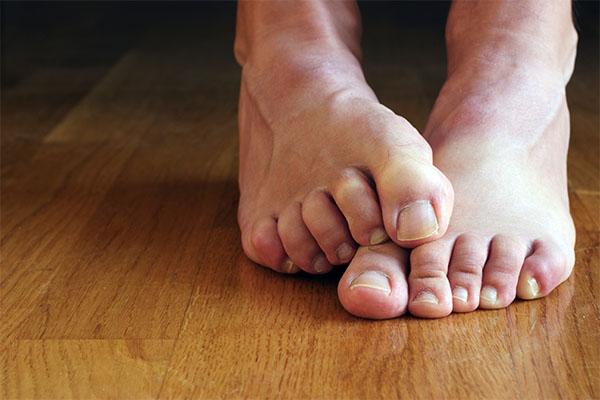 feet on cold floor